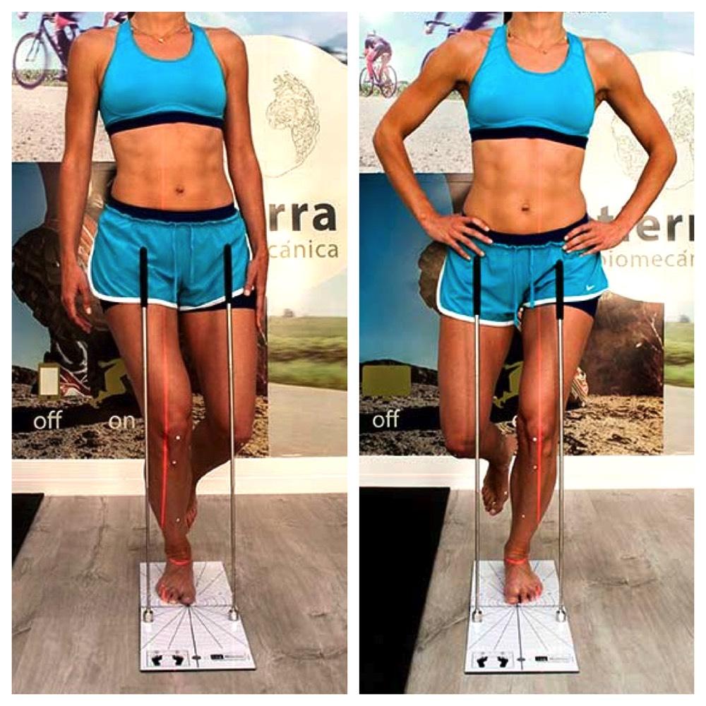 forma de correr sindrome femoropatelar lesion